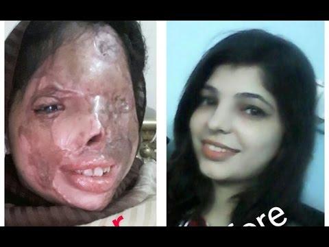 Acid victim at Waqar Zaka FOUNDATION, No crew, Just Waqar and his Mobile cam