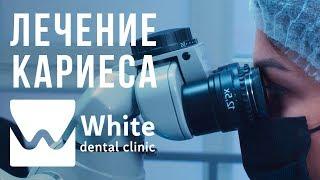 Лечение кариеса в Самаре с помощью микроскопа. Стоматологическая клиника White Dental Clinic Самара.(, 2018-02-13T14:53:03.000Z)