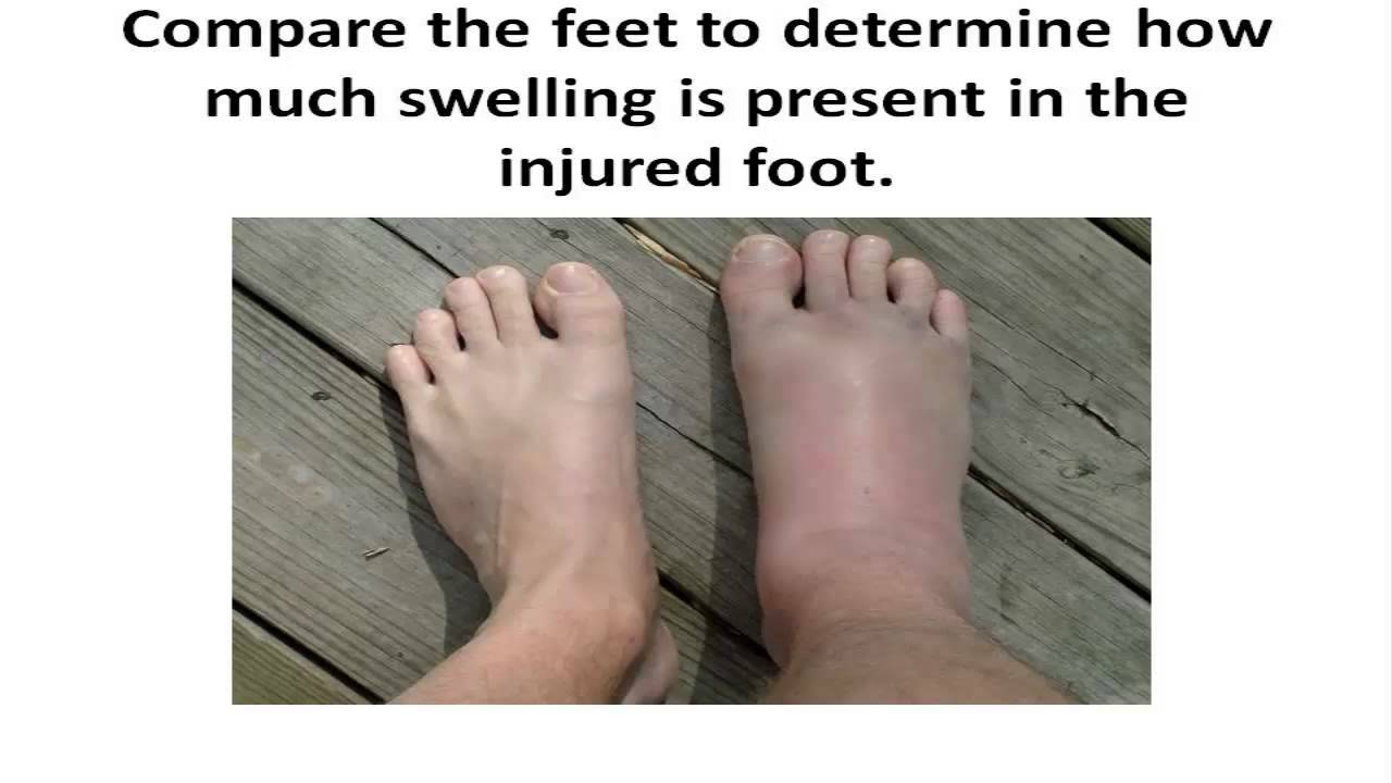 What to do if you have a broken foot |A First Aid ...
