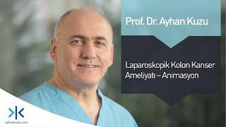 Laparoskopik Kolon Kanser Ameliyatı - Animasyon