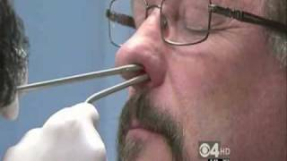 Balloon Sinuplasty Provides Quick and Easy Relief to Chronic Sinusitis Sufferers thumbnail