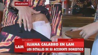 Accidente de Iliana Calabró: se quemó con agua hirviendo la entrepierna