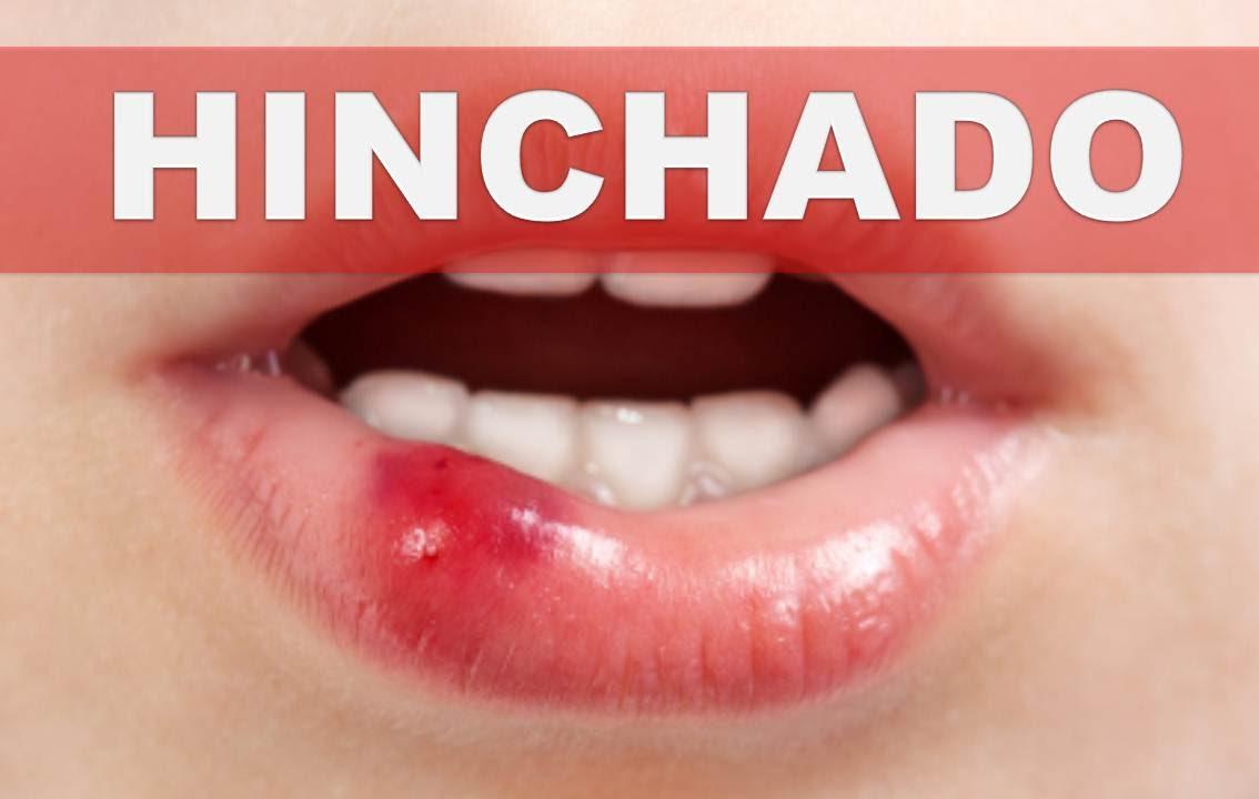 Granitos en la boca herpes dating 1