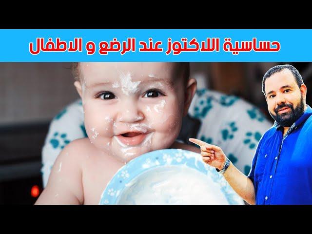 حساسية اللاكتوز عند الرضع و الاطفال اعراضها و علاجها Youtube