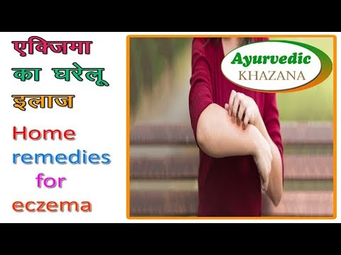 एकिजमा का घरेलू इलाज || Home Remedies For Eczema || Ayurvedic Khazana Health Tips Video