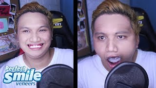 PERFECT SMILE VENEERS Product review (Nalunok ko pucha!)