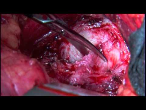 Open radical retropubic prostatectomy with neurovascular bundle preservation