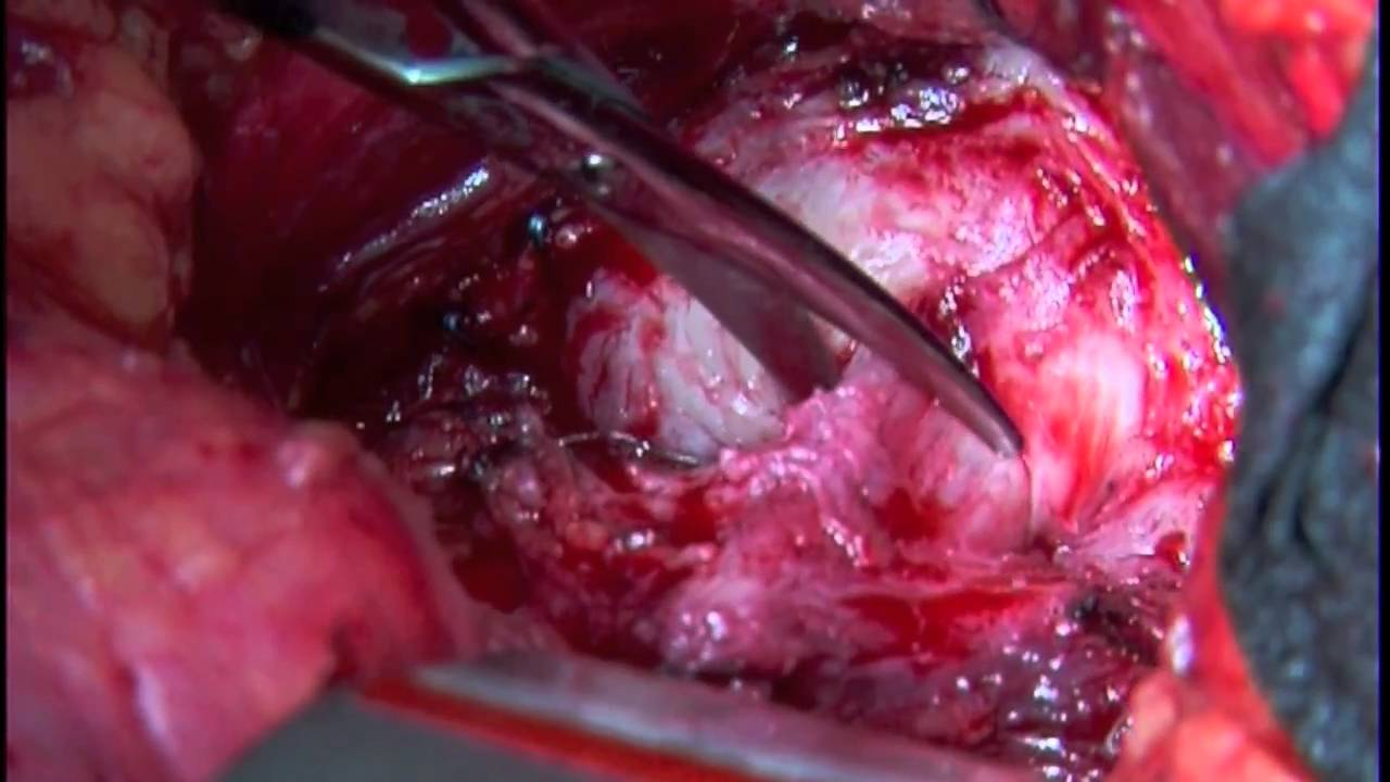 Open radical retropubic prostatectomy with neurovascular