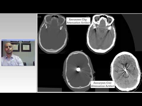 Cerebral Aneurysm Imaging Surveillance and Radiation Effects