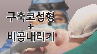 자가늑연골 구축코성형 코재수술 feat.전후사진