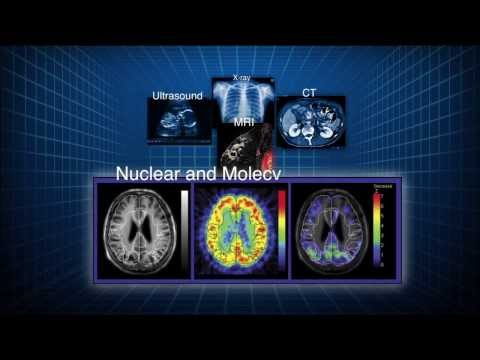 The Value of Nuclear Medicine and Molecular Imaging