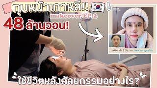 ทุบหน้า Ep.2 : VLOG ใช้ชีวิตหลังศัลยกรรมทั้งหน้า เจ็บรึป่าว?! | YuRi Ukuri