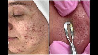 Hormonal Acne + Ice Pick Scars + Blackheads Deep Detox Facial {Her first facial ever!}