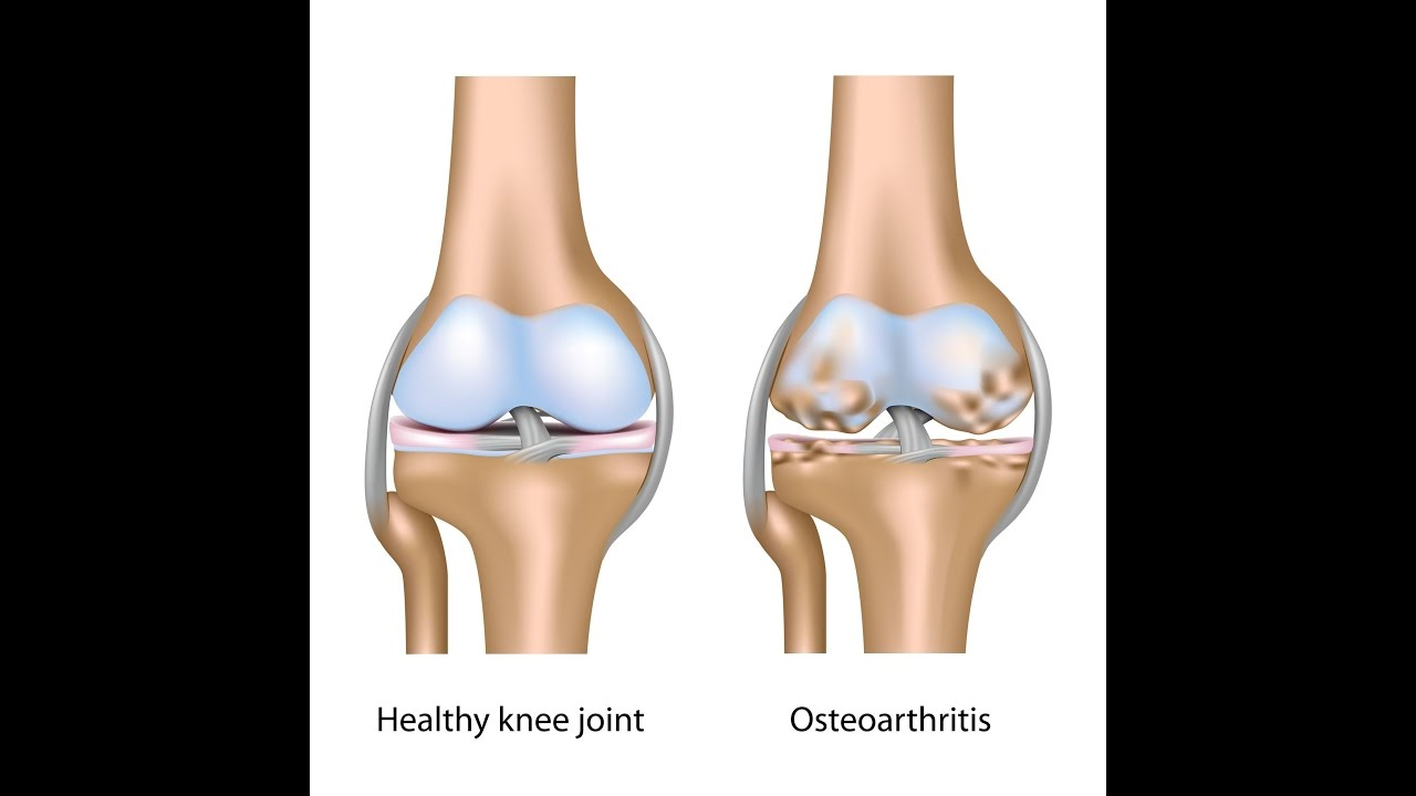For Chronic Knee Pain, What Is Normal vs Abnormal Knee Structure ...