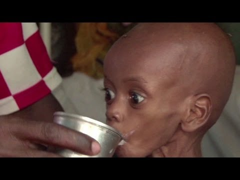 Somalia padece grave hambruna