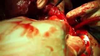 Repeat youtube video placenta increta