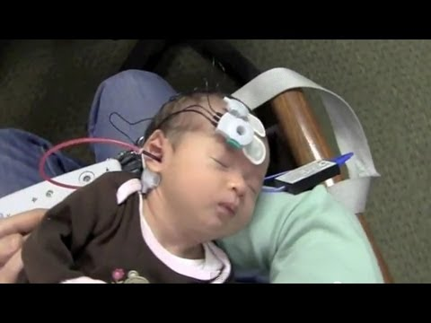 Newborn Hearing Testing Screening (OAE and ABR)