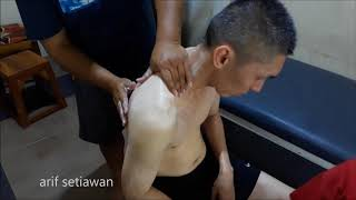 Dislokasi Shoulder (1).