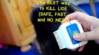 Best Way Kill Lice Safe Fast And No Mess