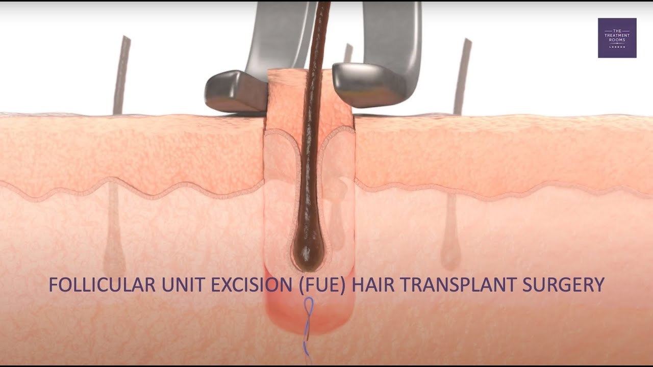 Download What is an FUE hair transplant?
