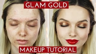 Acne Coverage // Glamorous Golden Makeup Tutorial // MyPaleSkin