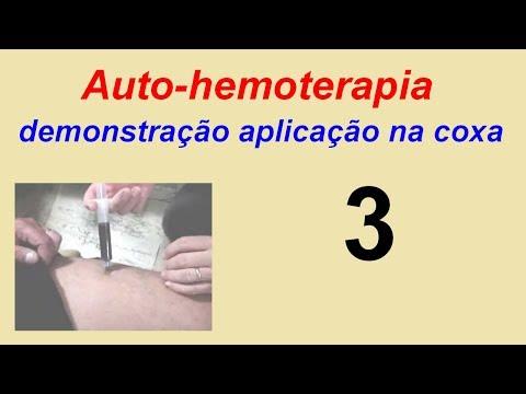 como aplicar stanozolol vasto lateral