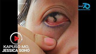 Kapuso Mo, Jessica Soho: Linta, pumasok sa mata!