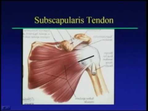 Shoulder Ultrasound Anatomy and Technique