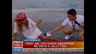 First aid tips kapag nakapitan ng dikya o jelly fish