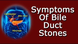 What Are The Symptoms Of Bile Duct Stones?