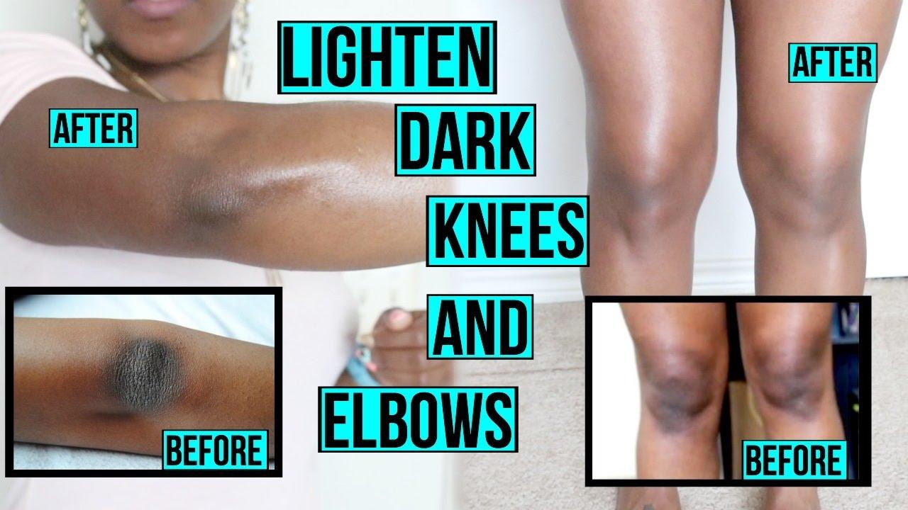 10Natural Tricks toRemove Dark Knees and Elbows