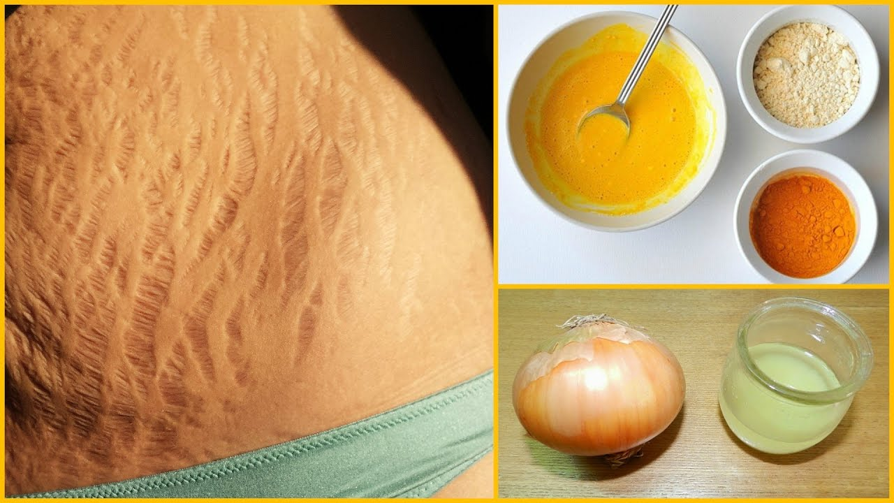 Natural Remedies For Pregnancy Stretch Marks