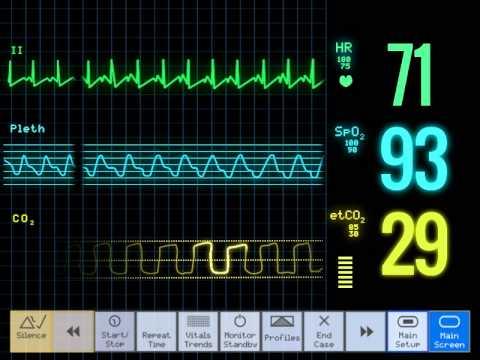 ECG Monitor Loop
