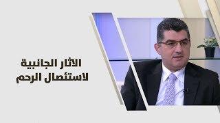 د. رامي محافظة - الاثار الجانبية لاستئصال الرحم