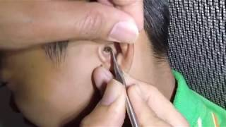 Boy's Impacted Earwax Removal