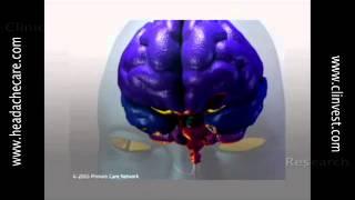 Knowledge Is Freedom: Understanding Migraine