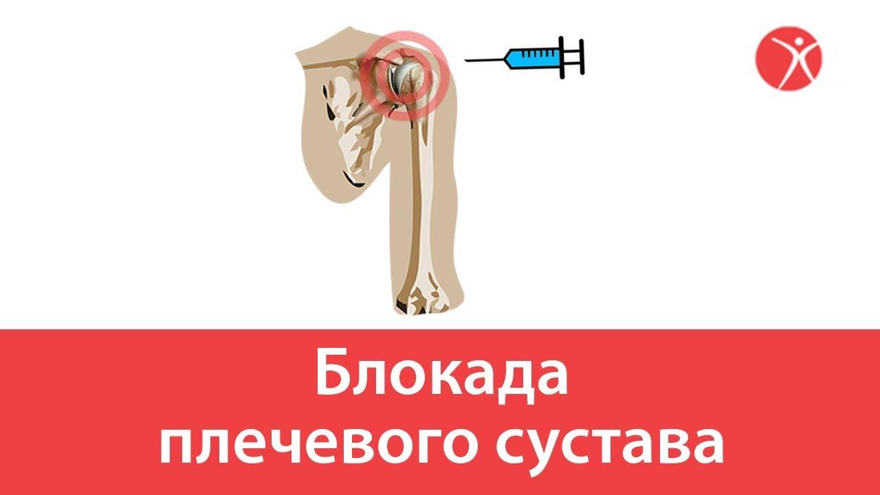 Блокада плечевого сустава.Мультик