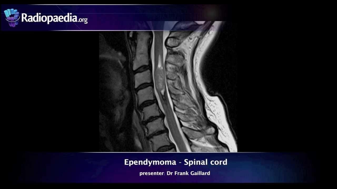 Spinal Ependymoma Radiology Video Tutorial Mri Youtube