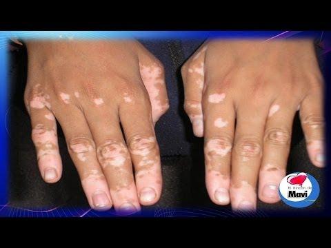 ¿Que es el vitiligo o leucoderma? - Causas, sintomas y remedios caseros