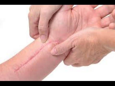 Como eliminar cicatrices