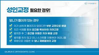 01치아교정 치료