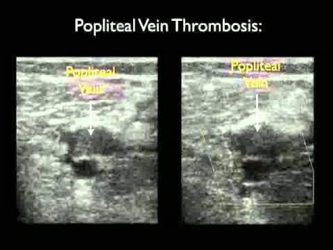 Cases | Emergency Ultrasonography