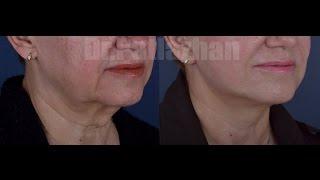 Подтяжка Лица(Короткое видео о подтяжке лица с пластикой мочки пациентки 62 лет. Приглашаем всех желающих узнать больше..., 2016-08-31T20:23:01.000Z)
