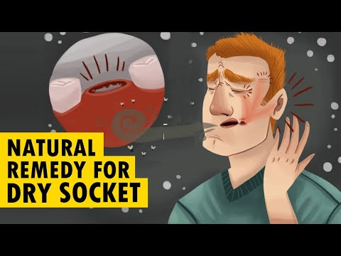 6 Natural Remedies To Get Rid Of Dry Socket At Home Fast! (100% Natural)