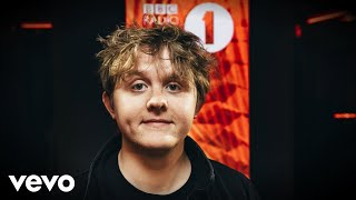 Baixar Lewis Capaldi - 2002 (Anne-Marie cover) in the Live Lounge
