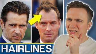Widows Peak VS Receding Hairline - Should You Be Worried?