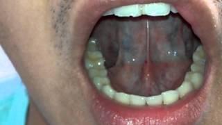 張孟超醫師-刺血療法-舌下靜脈放血法(1)