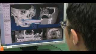 Osstem - всемирно известные имплантаты(Южно-Корейская компания по производству оборудования и материалов для стоматологических имплантатов., 2013-02-05T18:07:02.000Z)