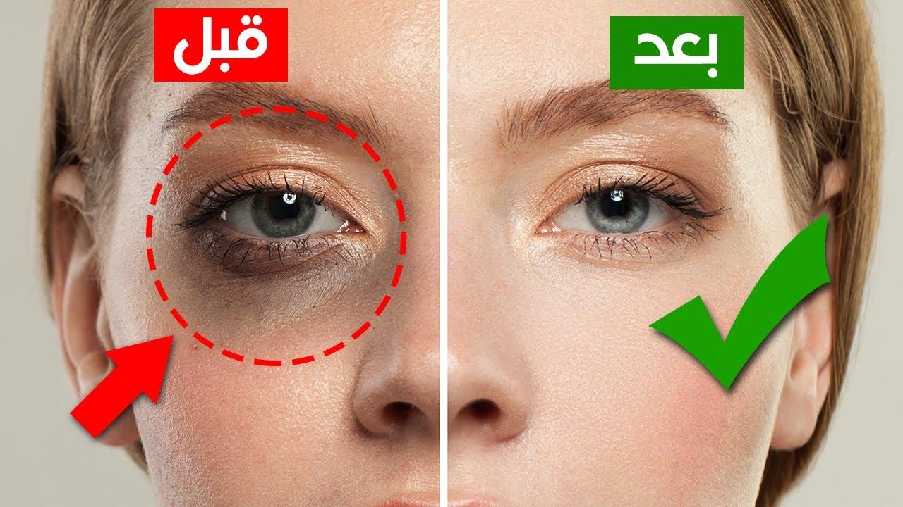 كيف تتخلصين من الهالات السوداء تحت العين نهائياً - طرق مجربة وفعالة