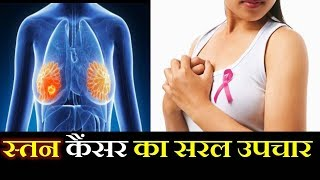 Breast cancer Best Ayurvedic treatment By Rajiv Dixit